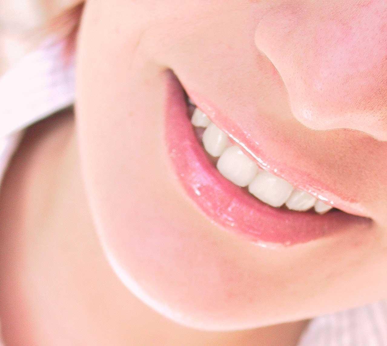 Выпрямление зубов с помощью брекетов